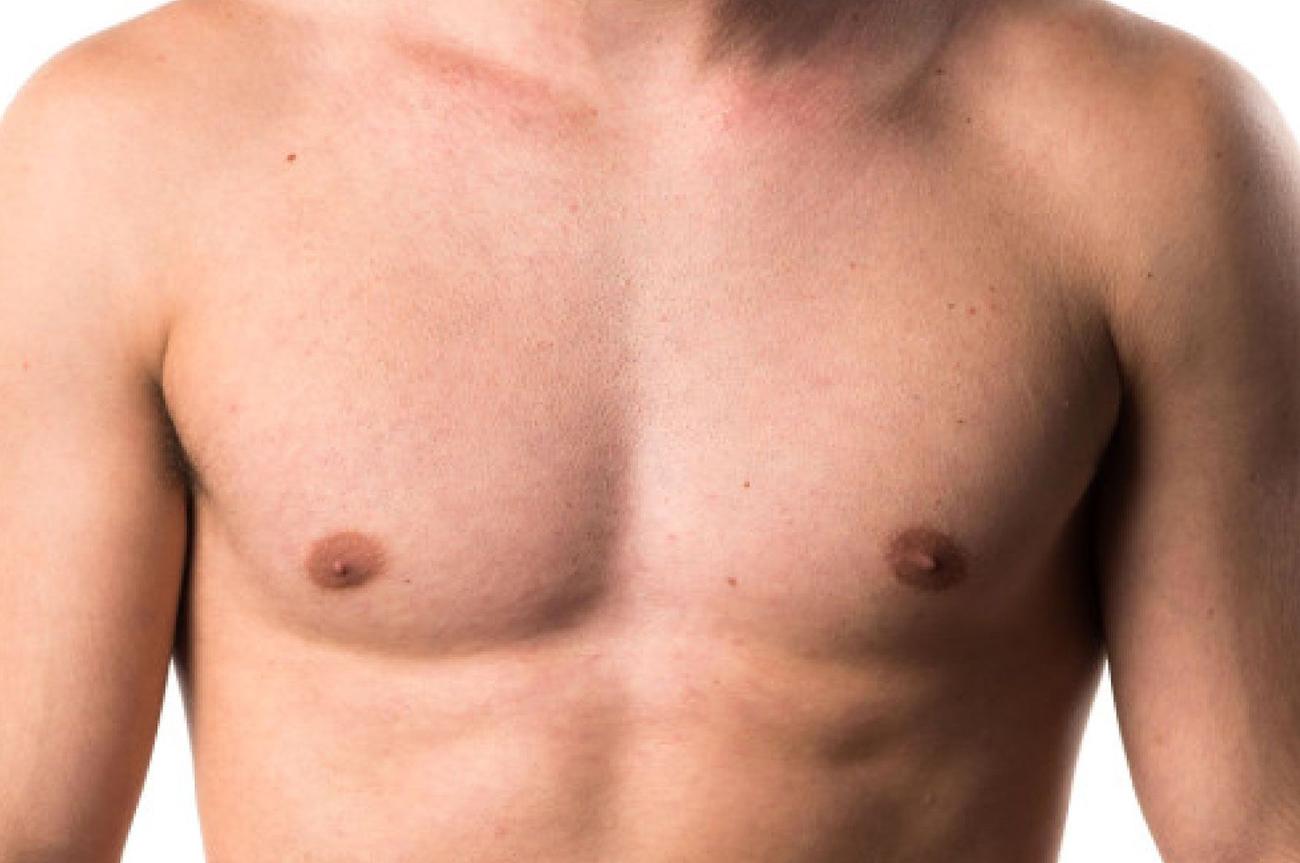ginecomastia corpo trattamento