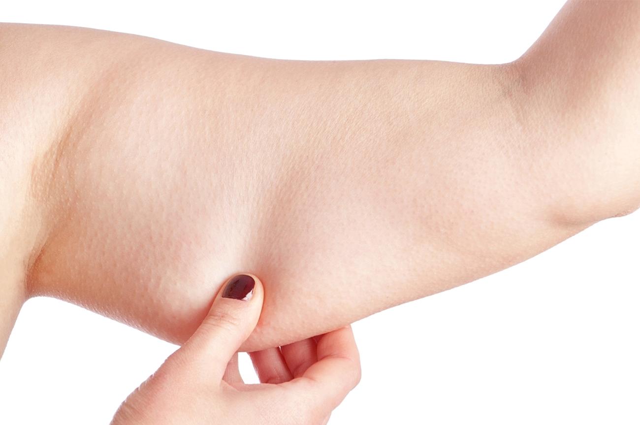 chirurgia braccia frosinone