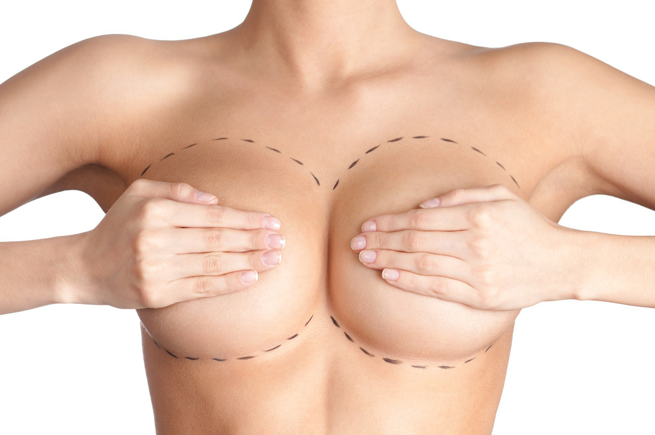 masto riduttiva seno