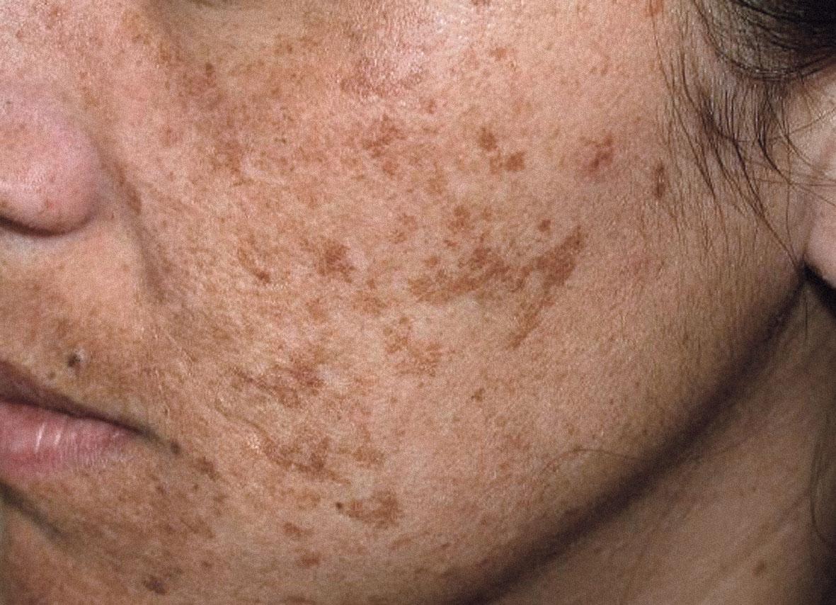 melasma dermatologia