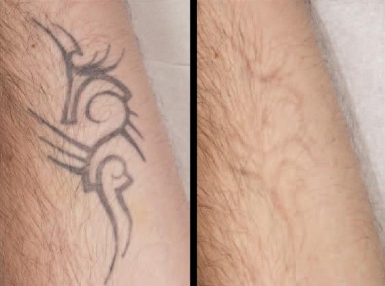 rimozione tatuaggio frosinone