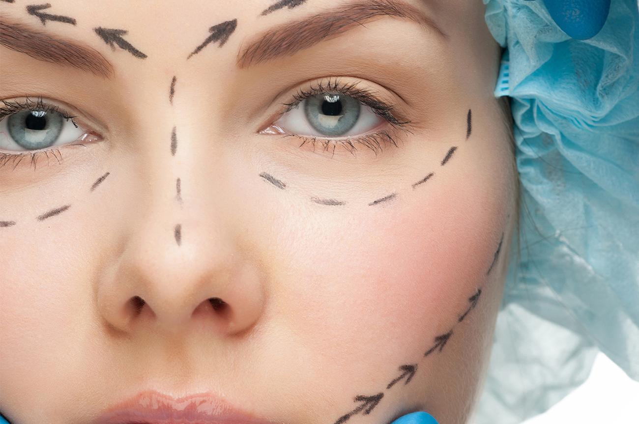 blefaroplastica chirurgia estetica